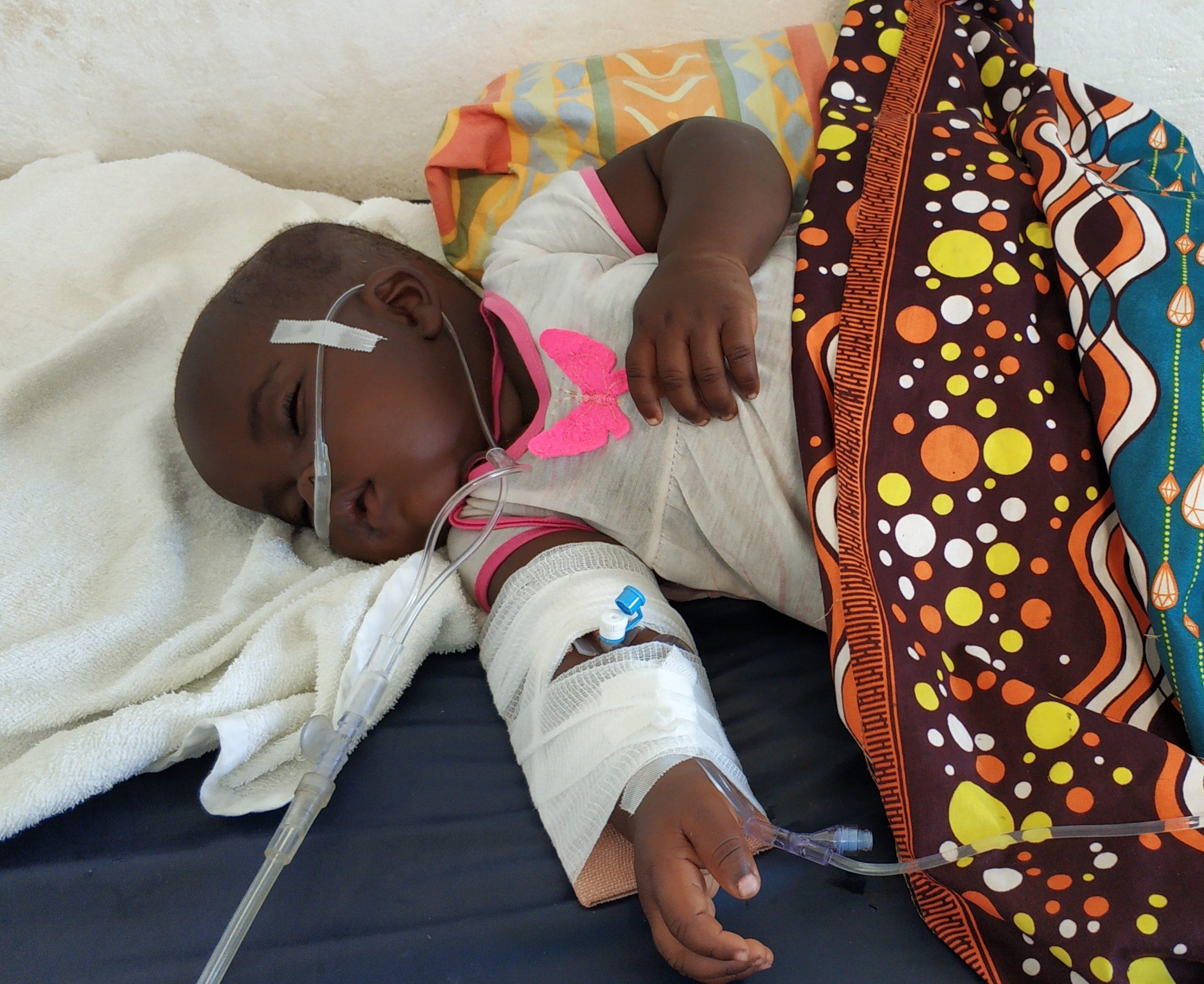 A toddler unconscious due to severe malaria